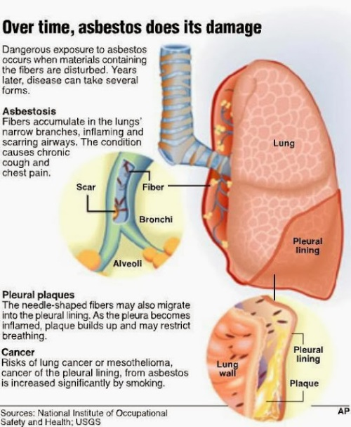 Asbestosis, Cancer Asbestos, Mesothelioma Symptoms, Information damage